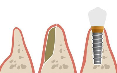 An illustrated example of a bone graft for a dental implant