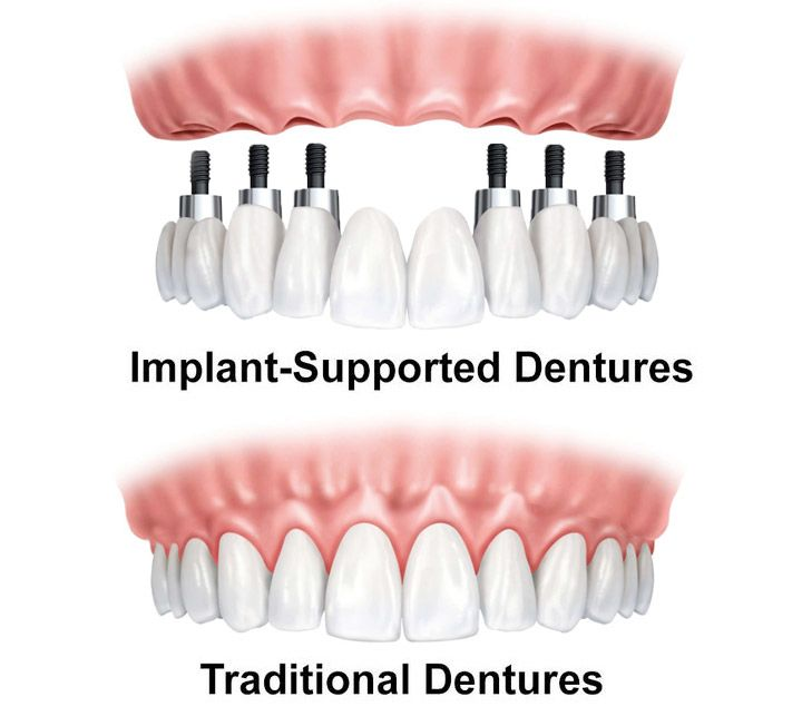 Illustration of a denture attached to dental implants, and one that sits on the gums