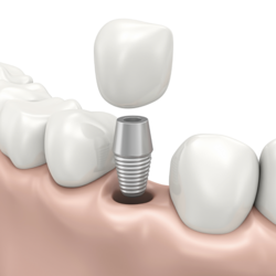 Graphic of a dental implant and dental crown