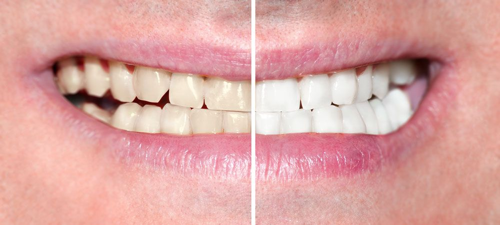A smile makeover before and after picture