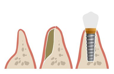 Illustration demonstrating bone grafting and then implant placement