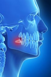 Illustration of jaw and teeth in blue with wisdom tooth highlighted in red