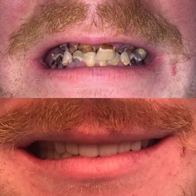 Immediate Dentures before and after photo