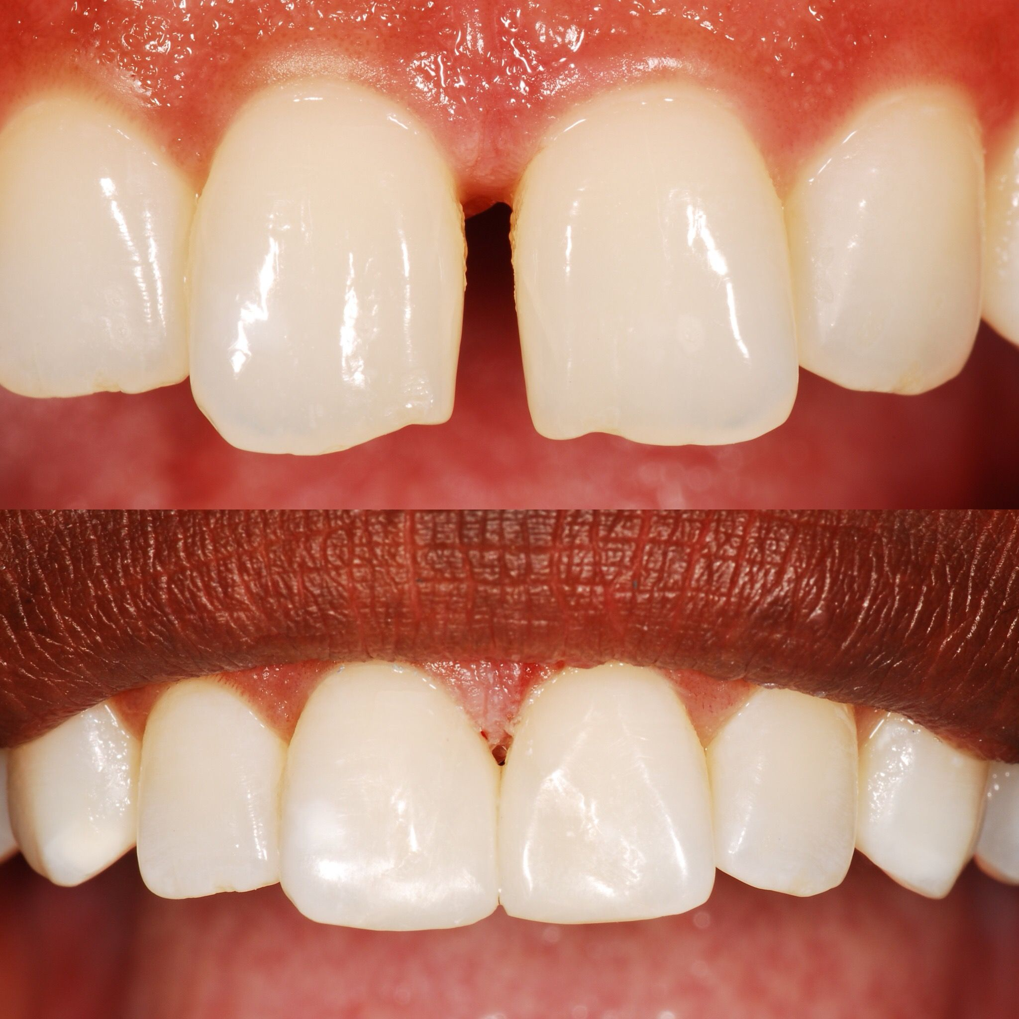 Dental bonding before and after closes a gap