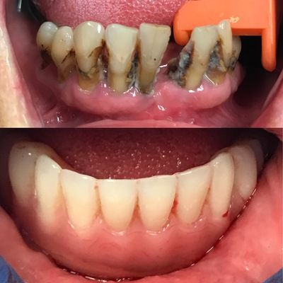 Lower all on four replacing failing teeth.