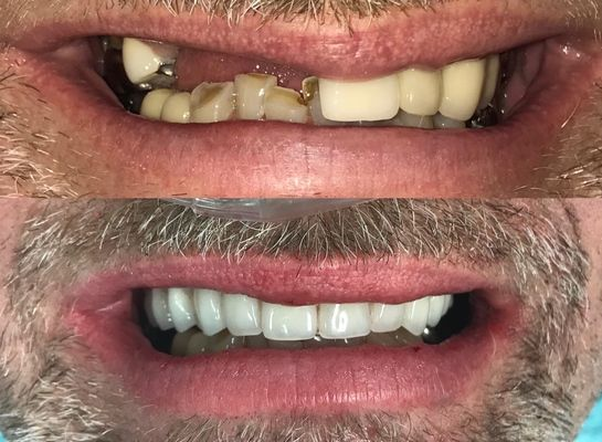 Cosmetic Dentistry to achieve a smile makeover