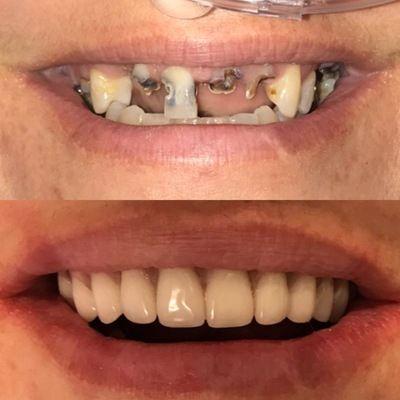 Upper All on Four Dental Implant