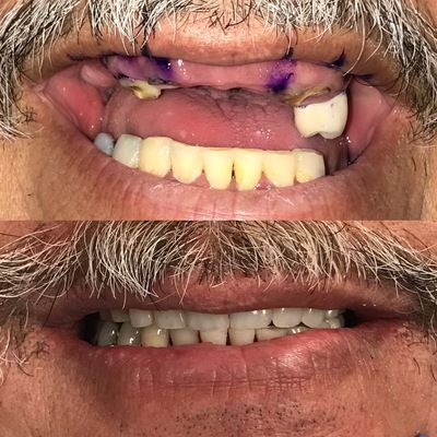 All on Four Dental Implant Surgery replacing broken and failing teeth