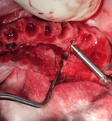 Palatal placement of the posterior implant for successful treatment for the all on four