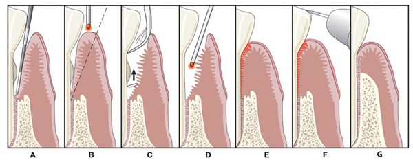 Image of laser dentistry LANAP procedure
