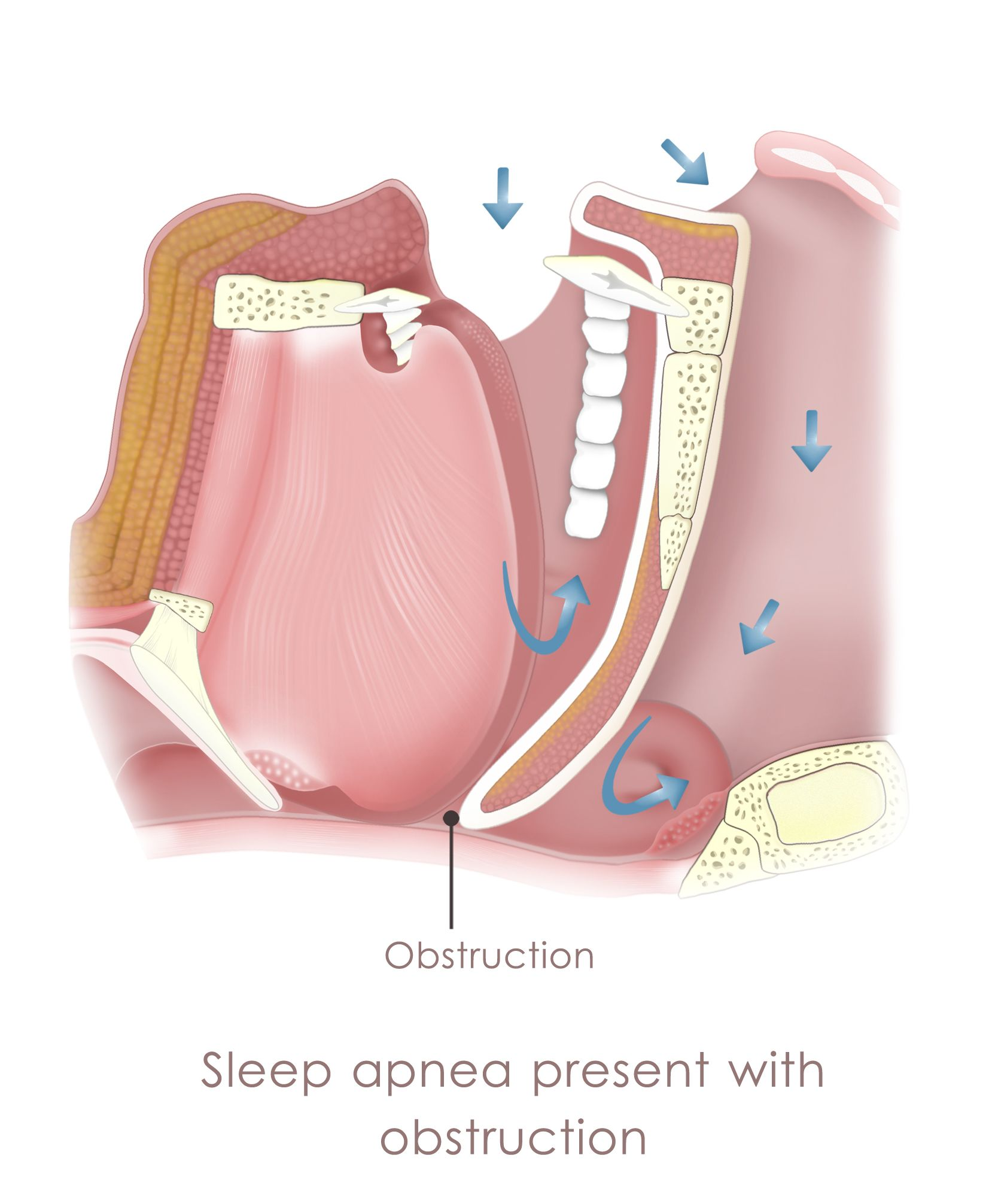 Image of airway obstructed by sleep apnea