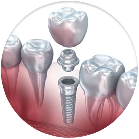 Image of dental implant