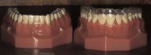 invisalign fitted over dental model