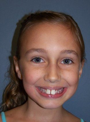 Before orthodontics