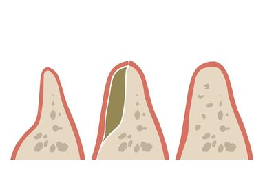 Illustration of what bone grafting can do.