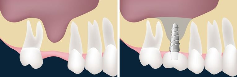 Illustration of sinus lift surgery.