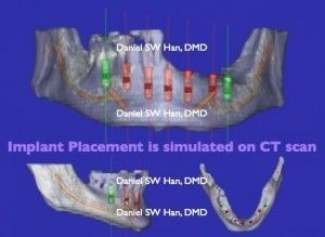 Image of CT scan Dental Implant Placement simulation