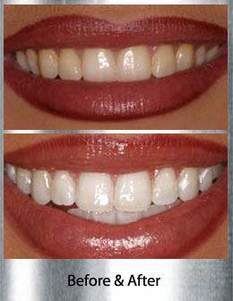 Teeth Whitening Mclean Va Han And Ahn Dmd Pc