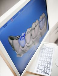 A computer monitor displays a 3D scan of a patients teeth