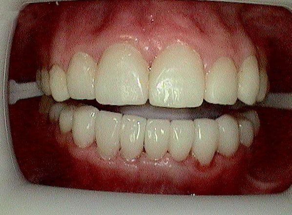 Dentist Blue Springs Kansas City Mo Matthew A