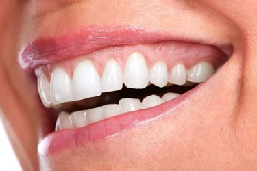 image of woman smiling after gum contouring