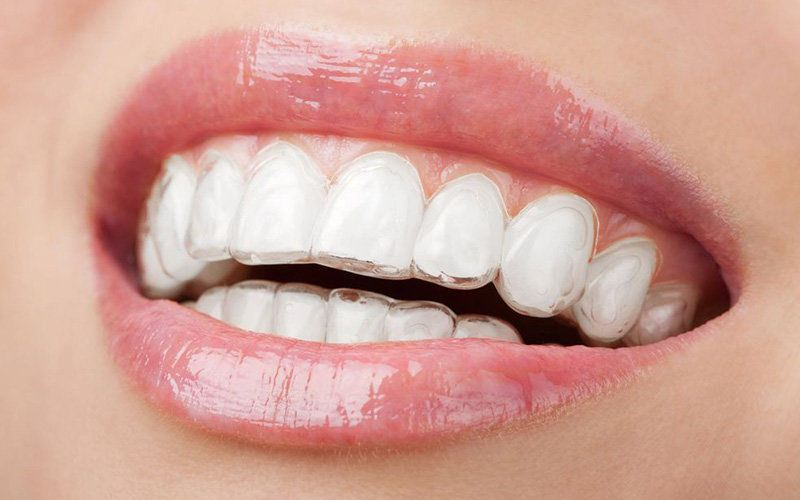 Photo of patient wearing Invisalign®