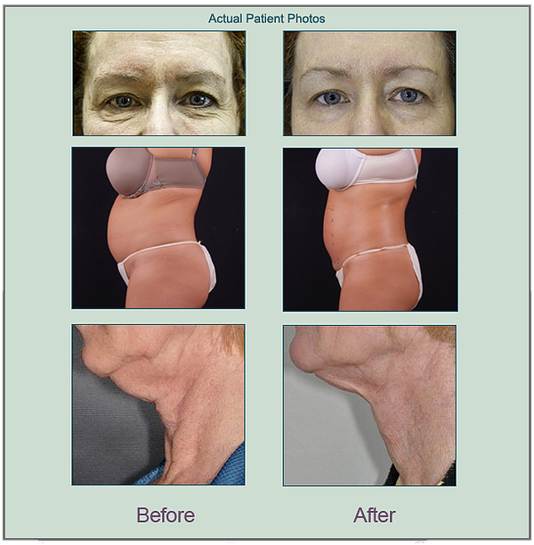 Before and after exilis photos