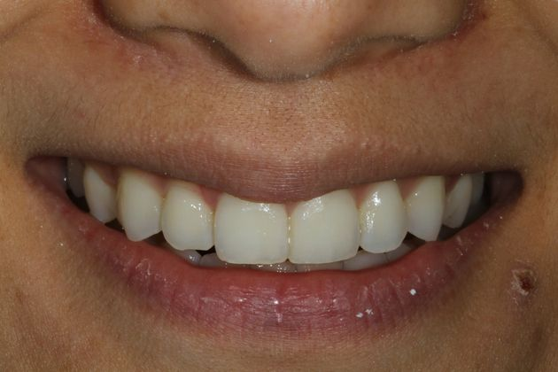 Before: A patient's smile