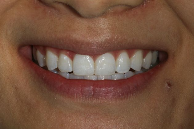After: The same patient's smile, not several shades lighter