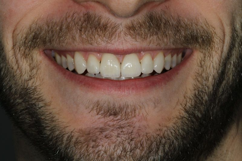 Dentist holding a porcelain veneer to a patient's tooth