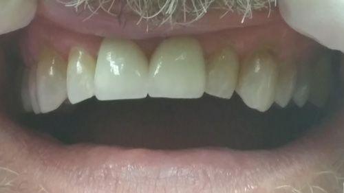 patient after dental procedure