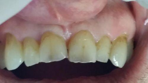 patient before dental procedure