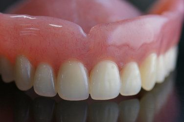 An upper denture