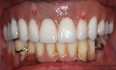 After picture of patient after receiving dental implants and porcelain crowns