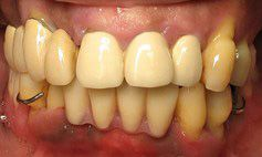 Before picture of patient with advanced tooth decay and gum disease