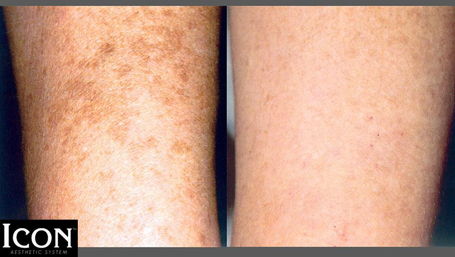 Before and after picture of a patient's arm that had laser skin treatment