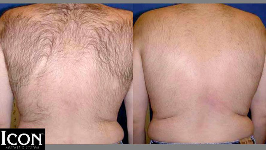 Laser hair removal peachtree city ga atlanta ga hair removal before and after picture of laser hair removal on a mans back solutioingenieria Choice Image