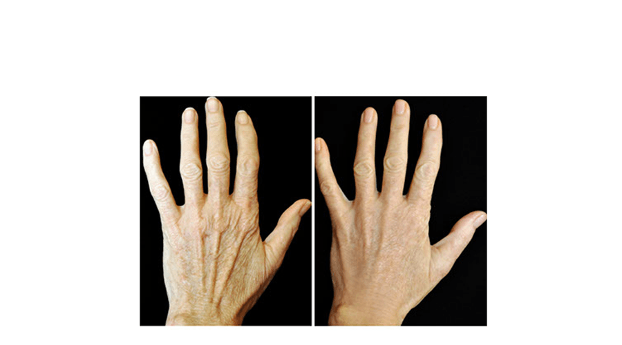 Before and after treatment with RADIESSE® Hands