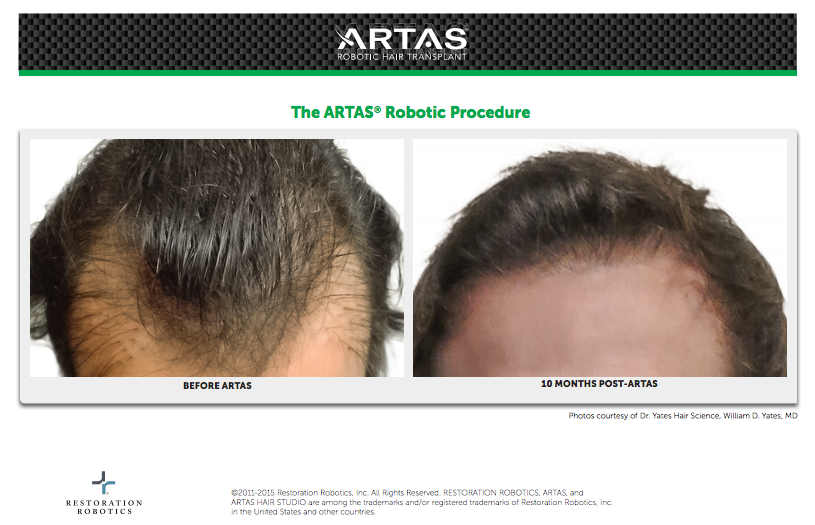 Before and after ARTAS hair restoration