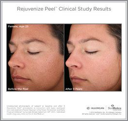 SkinMedica® Before and After Photos