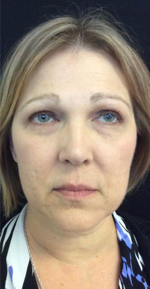 Voluma® Treatments Before