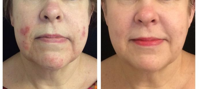 DermaSweep before and after photo