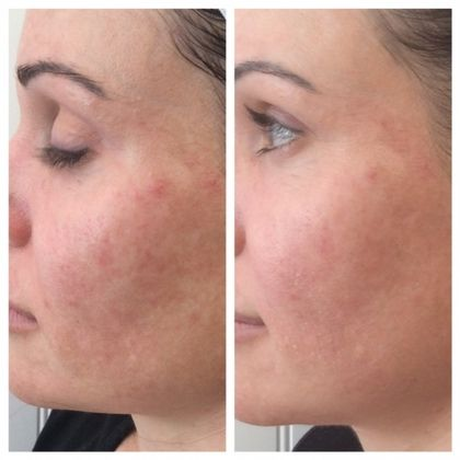 Before and After SkinPen® photo