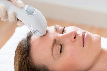 photo of a woman receiving a photofacial