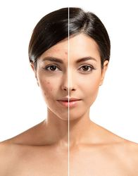 Before and after skin treatment