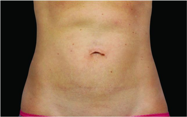 After body contouring