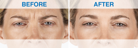 Before: woman with lines around eyes and between brows. After: woman with smoothed skin around eyes and brows.