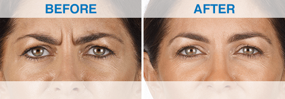 Before: woman with furrowed brows and lines around eyes. After: same woman, but with smoother skin.