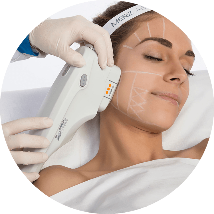 Ultherapy® - Greenville, SC - Anderson, SC - Myrtle Beach, SC