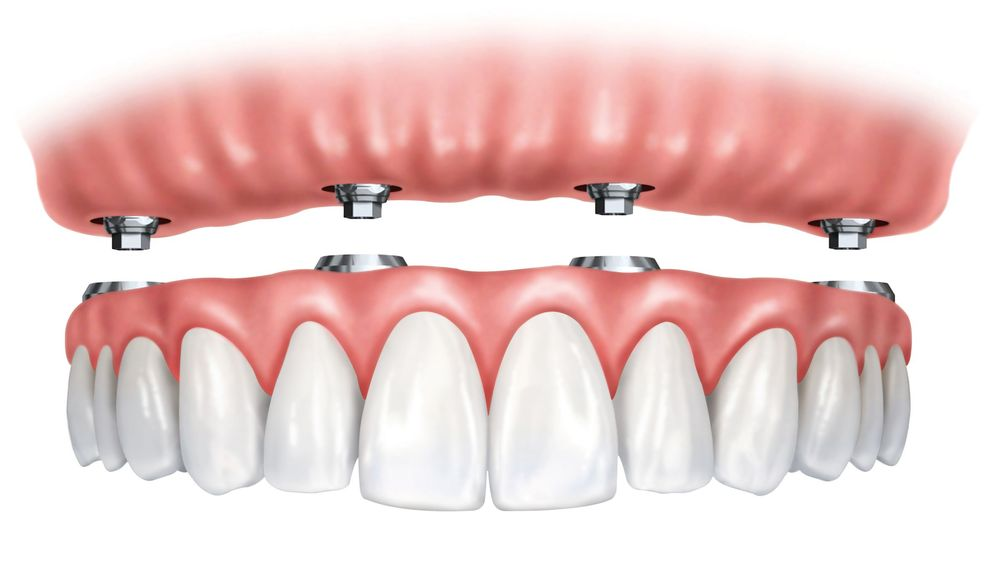 An illustrated example of All-on-4® dental implants